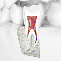 歯の根の治療の徹底