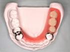 バネ付き部分入れ歯